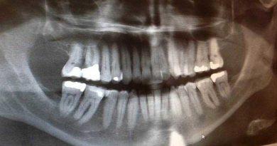 dentisti-troppe-radiografie-inutili