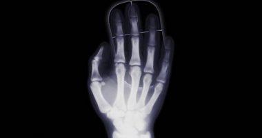 Osteoporosi un evento per sensibilizzare sulla malattia