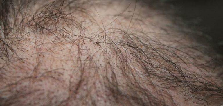 La tricopigmentazione a Roma per eliminare l'alopecia