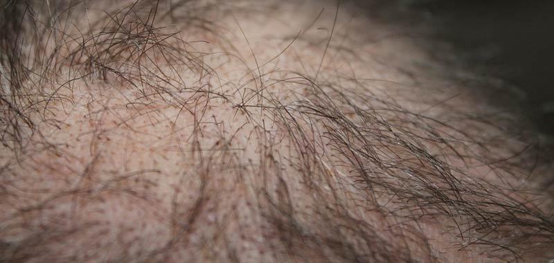La tricopigmentazione a Roma per eliminare alopecia