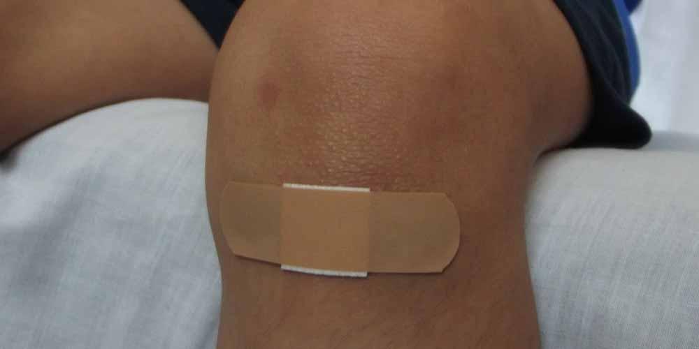 elettricita utile per far guarire prima le ferite